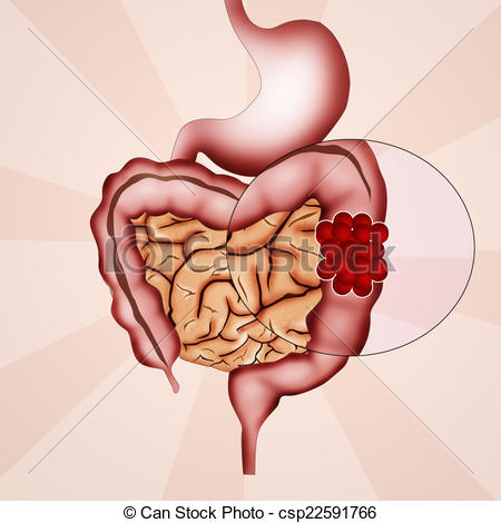 Colon cancer ribbon Illustrations and Clipart. 181 Colon cancer.