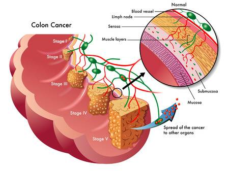 2,316 Colon Cancer Stock Illustrations, Cliparts And Royalty Free.