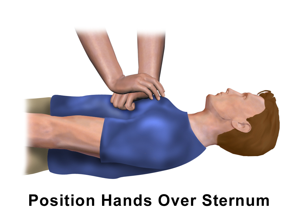File:CPR Adult Chest Compression.png.