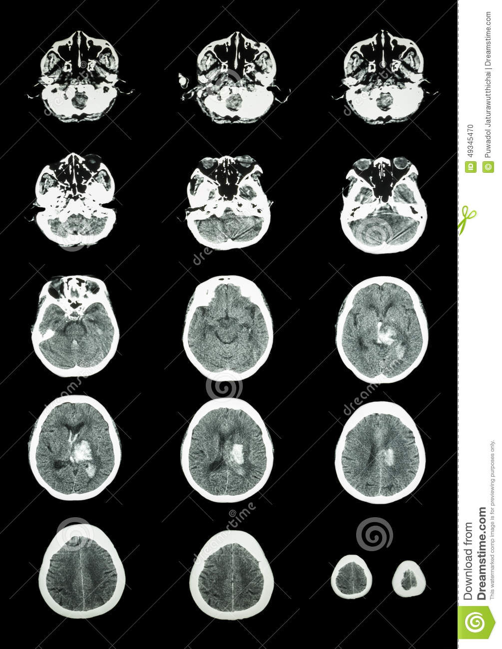 Hemorrhagic Stroke Clipart.