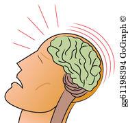 Concussion Clip Art.