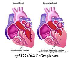 Heart Failure Clip Art.