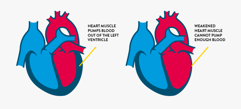 What Can Cause Heart Failure , Transparent Cartoon, Free.