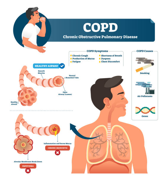 Best Copd Illustrations, Royalty.