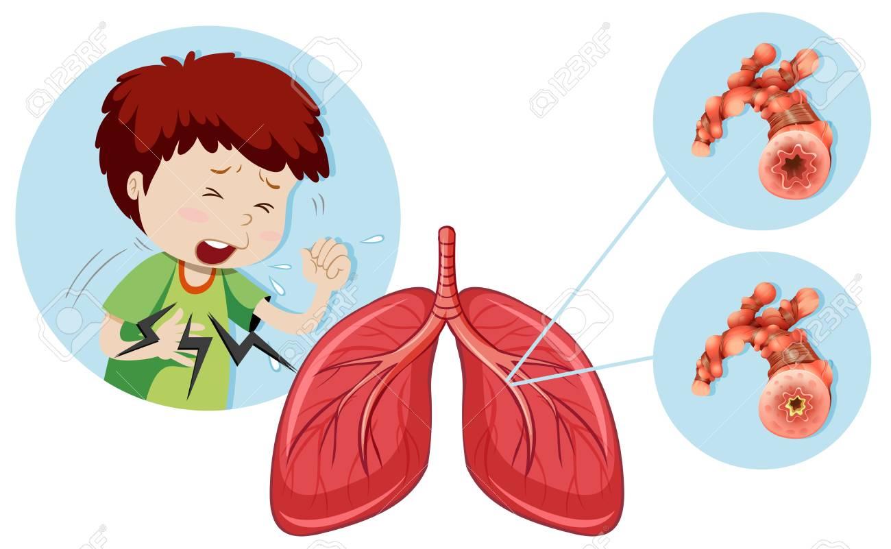 A Man Having Chronic Obstructive Pulmonary Disease illustration.