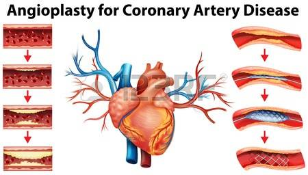 Coronary artery disease clipart.