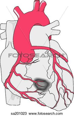 Drawing of Coronary bypass. Anterior view of normal heart.