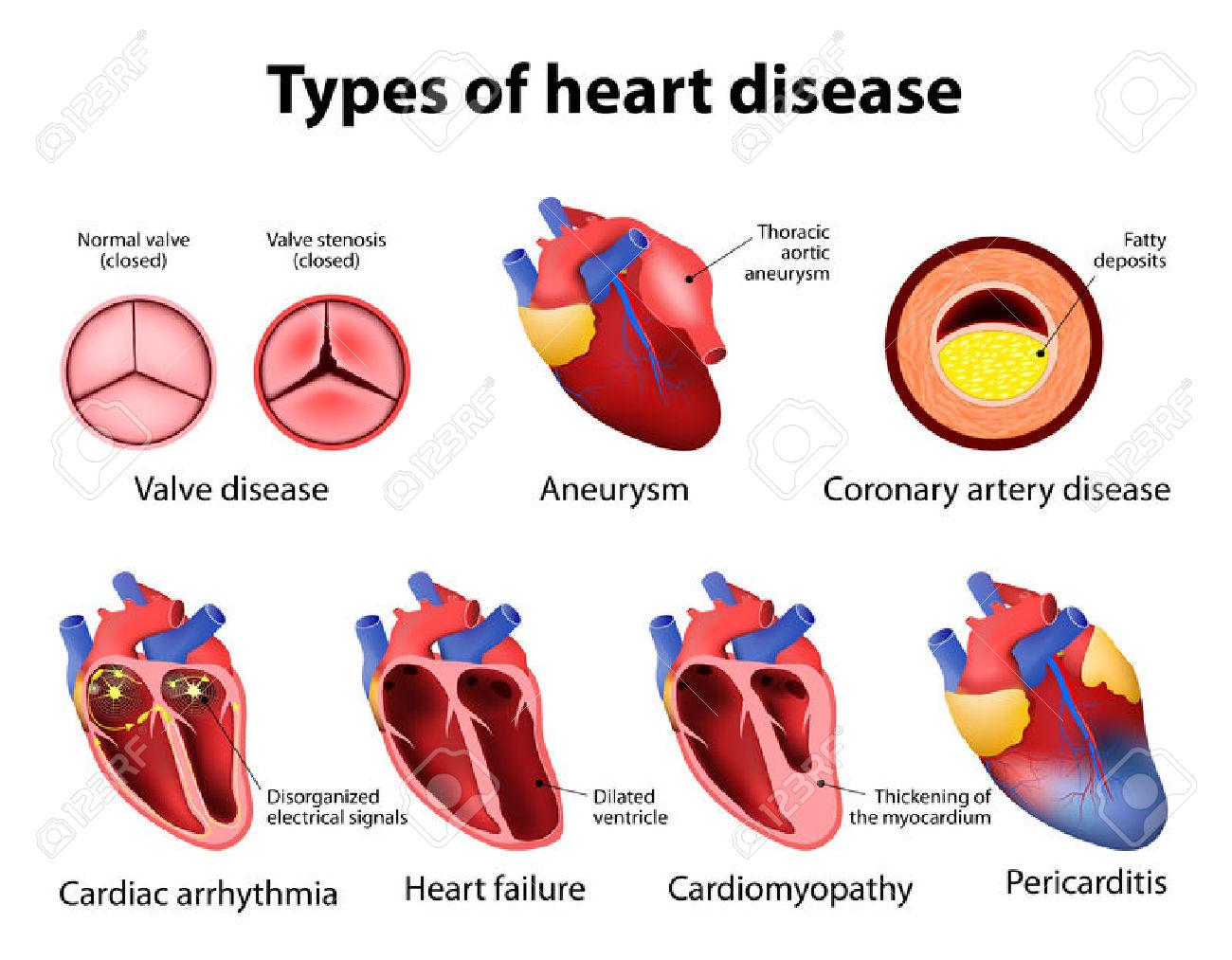 Coronary heart disease clipart.