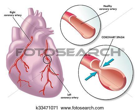 Clipart of coronary artery spasm k33471071.