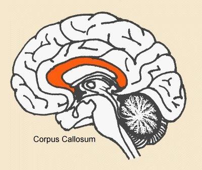 1000+ ideas about Corpus Callosum on Pinterest.