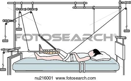 Clipart of Principle of balanced suspension traction. The.