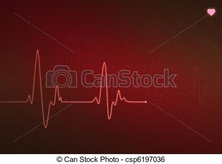 Stock Illustration of Critical Heart Condition.