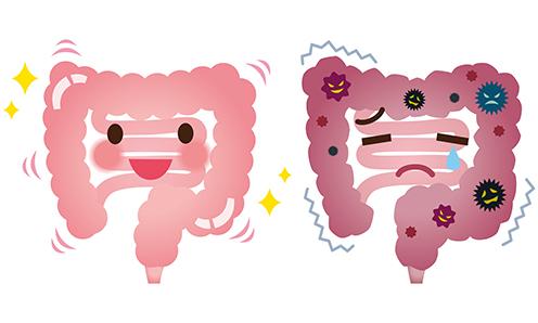 Inflammatory Bowel Disease.