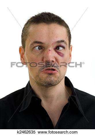 Stock Image of broken, crooked nose and black, crossed eyes.