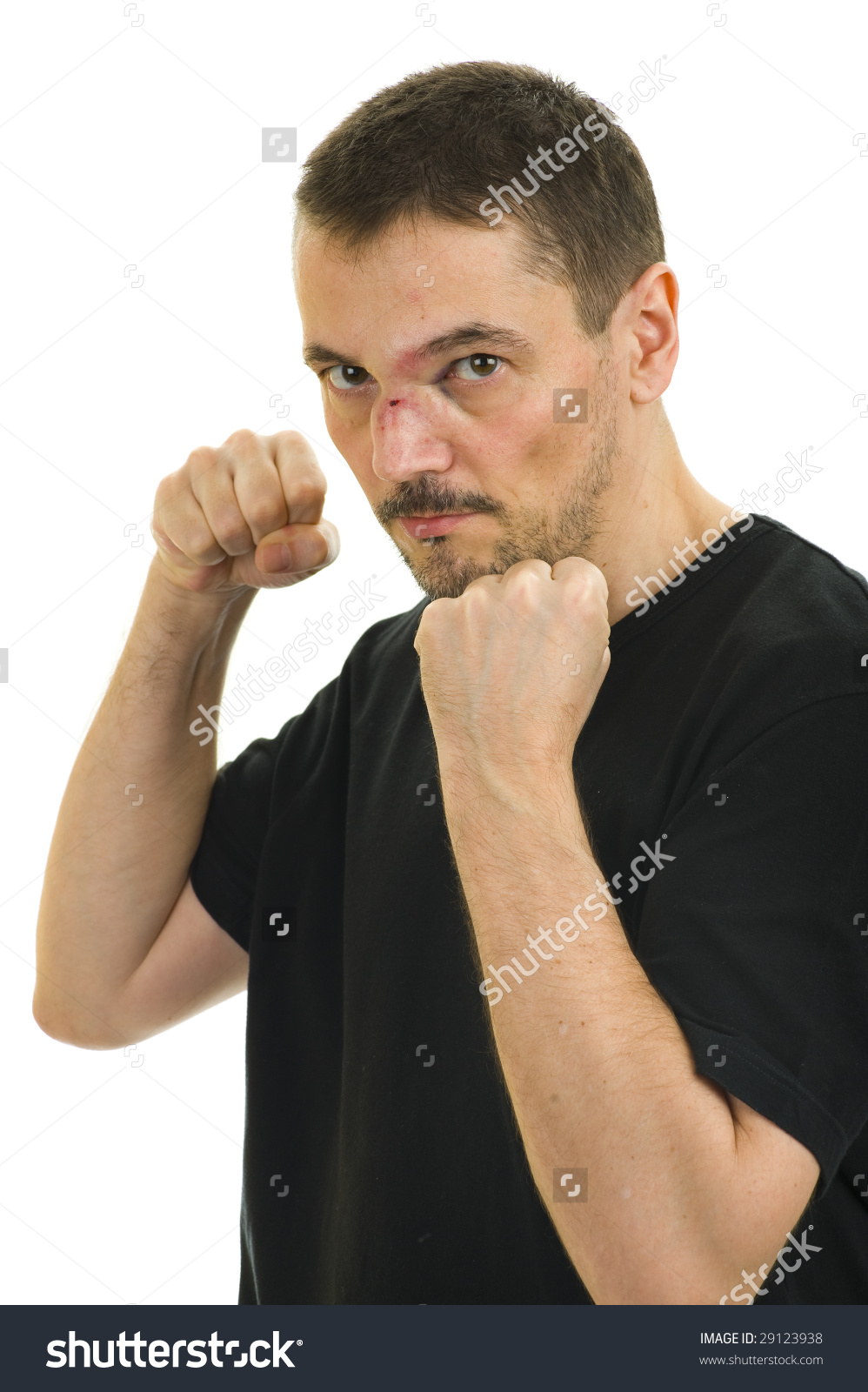 Man With Broken, Crooked Nose And Black Eye Isolated On White.