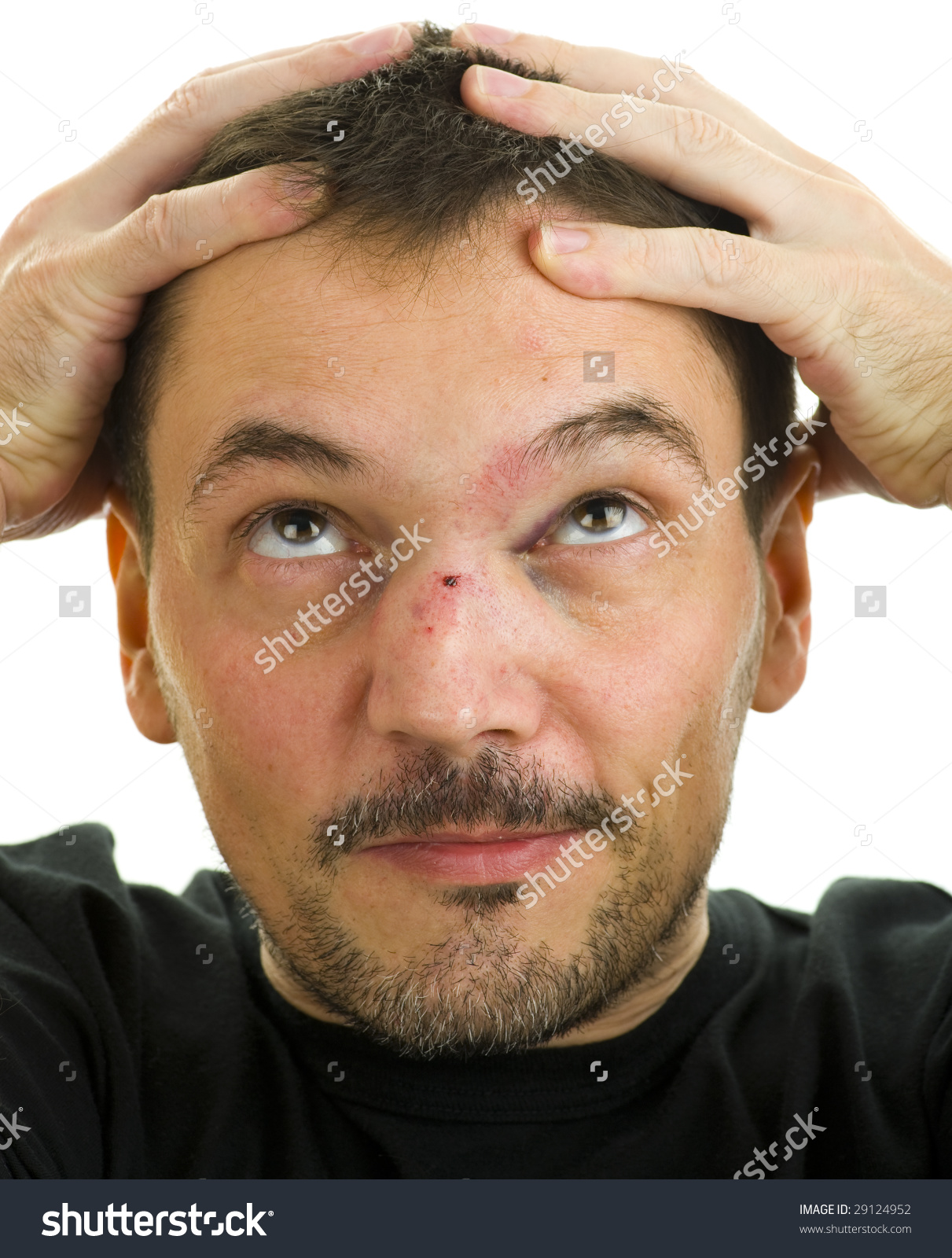 Man Crooked Broken Nose Black Eye Stock Photo 29124952.