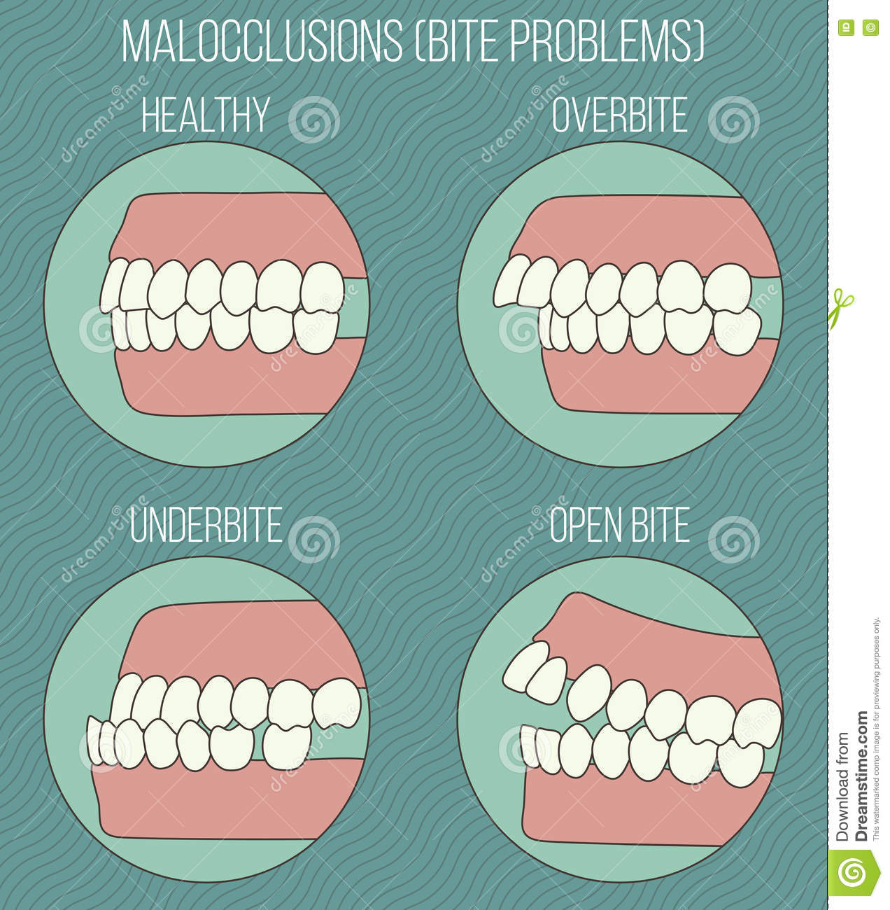 Crooked Teeth. Malocclusion Problems. Stock Vector.
