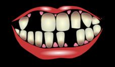 Crooked teeth clipart.