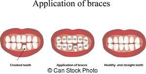 Crooked teeth Vector Clipart Illustrations. 30 Crooked teeth clip.