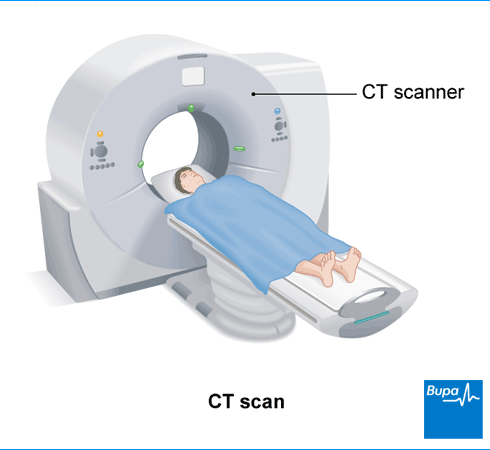 CT scan.