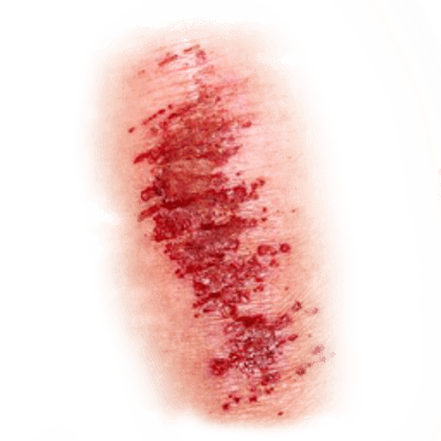 Download Free png Elastic bandage Mud wrap Adhesive bandage Wound.