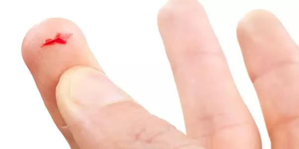Cut Finger PNG Transparent Cut Finger.PNG Images..
