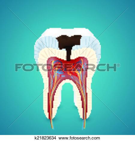 Clipart of Teeth caries in cutaway k21823634.