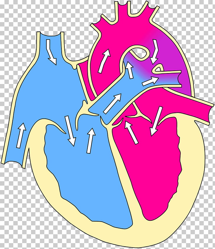 Tetralogy of Fallot Congenital heart defect Cyanotic heart.