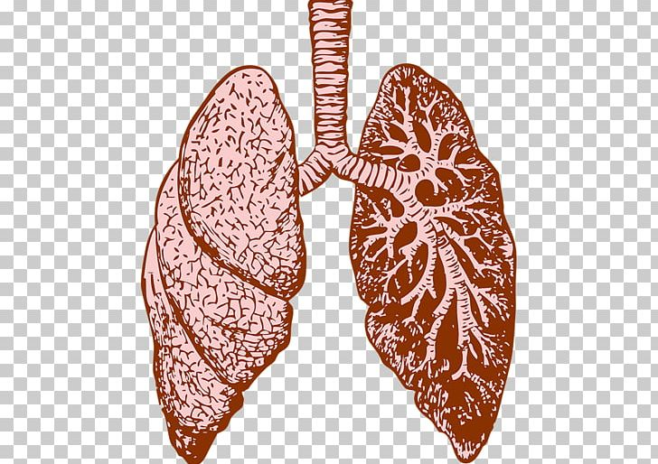 Lung Cystic Fibrosis Idiopathic Pulmonary Fibrosis Therapy PNG.