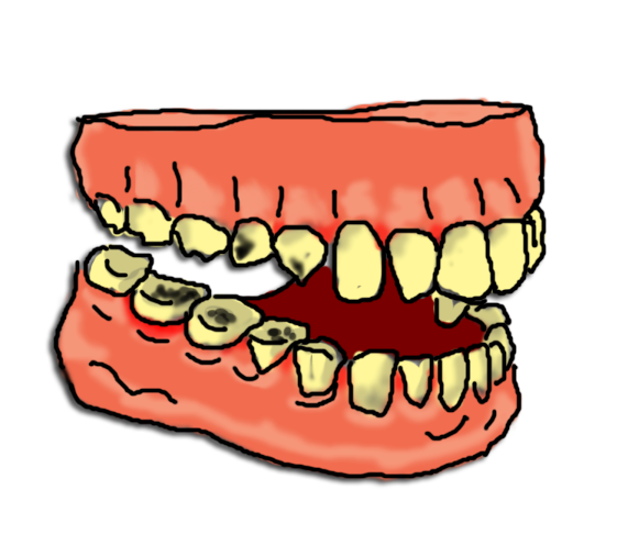 Tooth Decay Clipart.