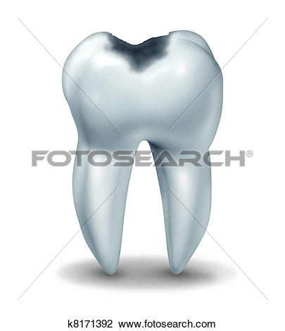 Clip Art of Cavity tooth decay disease symbol k8171392.