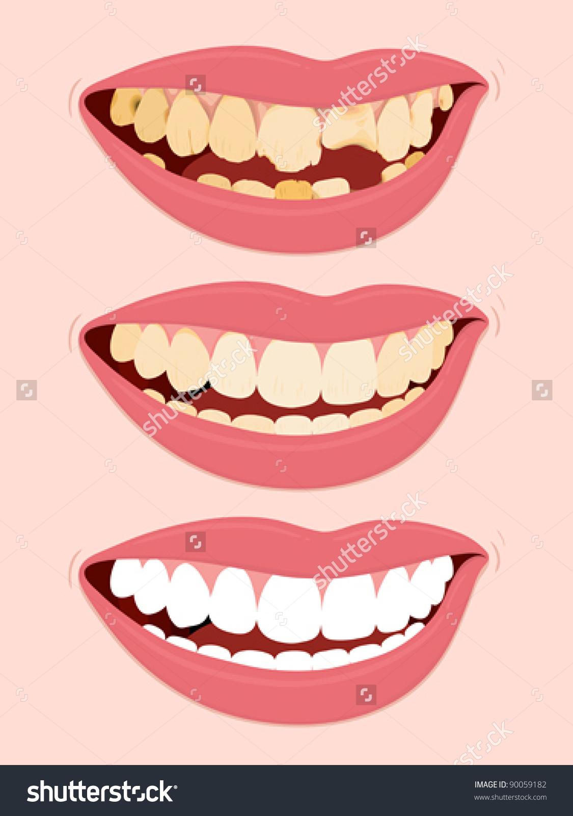 Tooth Cavity Clip Art.