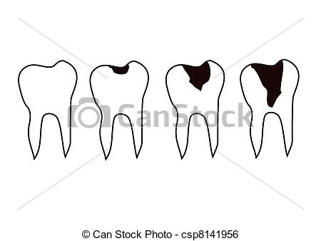 Tooth decay Illustrations and Clipart. 3,424 Tooth decay royalty.