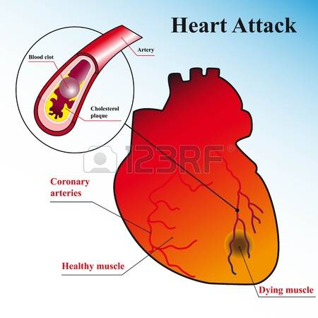 12,662 Heart Disease Stock Illustrations, Cliparts And Royalty.