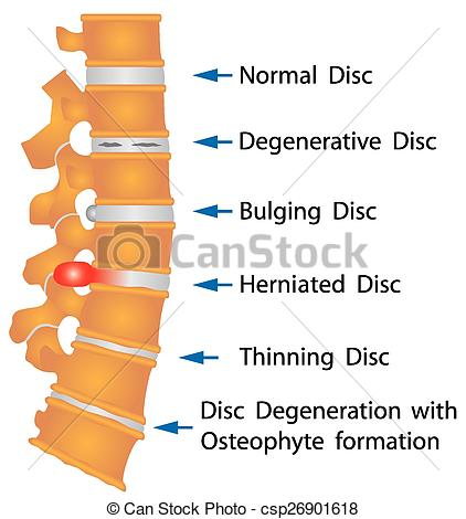 Vector Clip Art of Spine conditions. Degenerative Disc. Bulging.