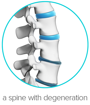 Lumbar Degenerative Disc Disease.