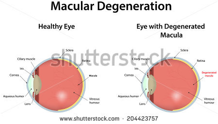 Macular Degeneration Stock Vectors & Vector Clip Art.