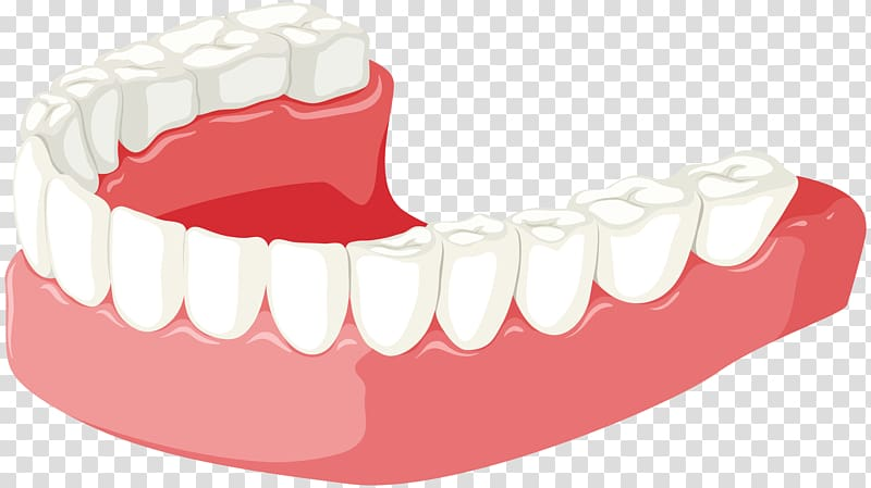 Tooth Jaw Dentures , dent transparent background PNG clipart.