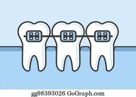 Dental Braces Clip Art.