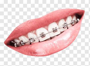 Dental Braces cutout PNG & clipart images.