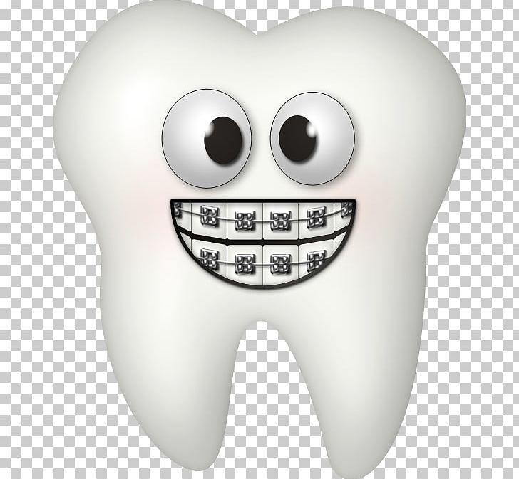 Dental Braces Dentistry Tooth PNG, Clipart, Bone, Clip Art.