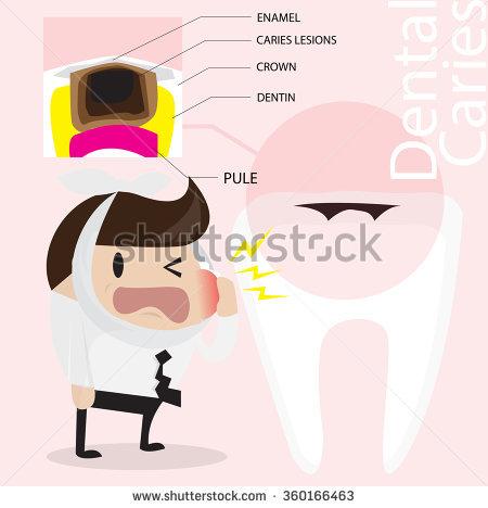 Dental Caries Vector Cartoon.