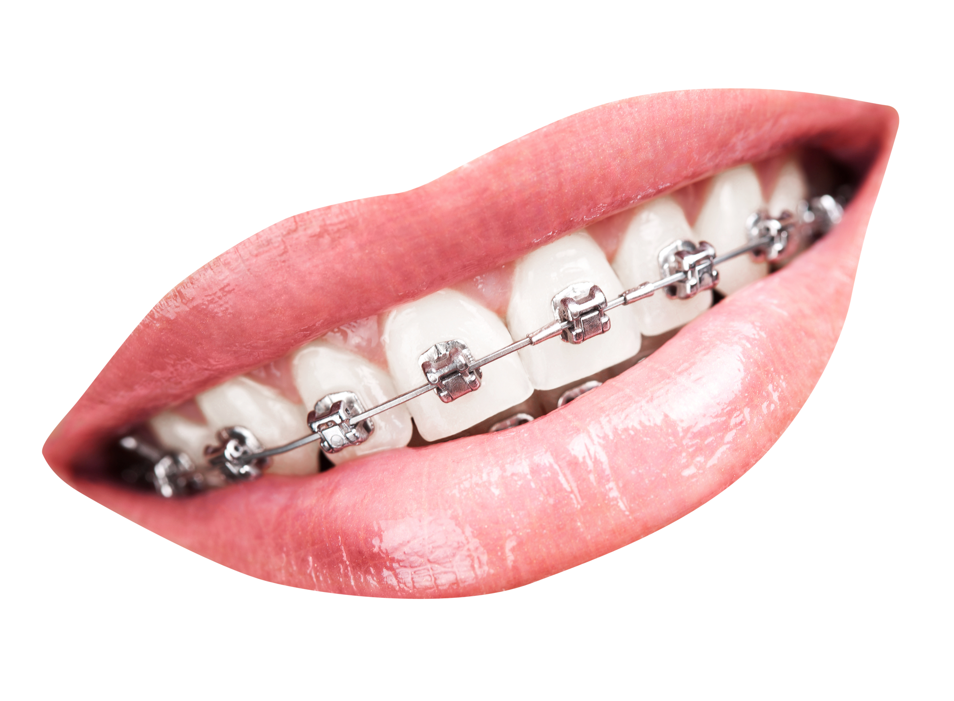 Teeth With Braces PNG Transparent Image #41897.