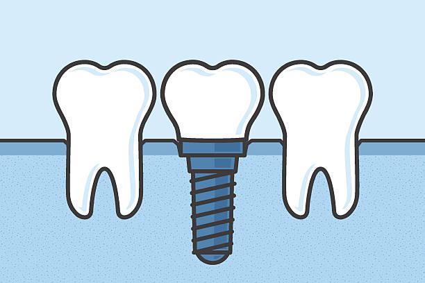 Best Dental Implant Illustrations, Royalty.