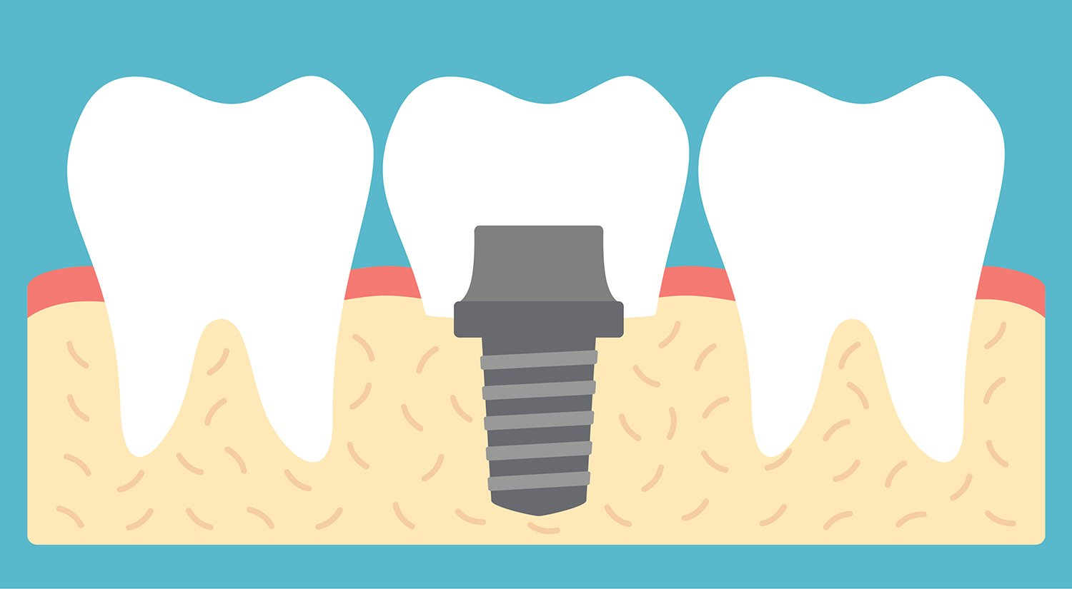Dental Implants: What to Expect, Complications, Procedure, and FAQs.