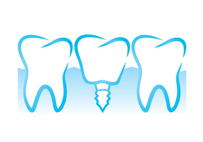 Rotterdam Dental Implants.