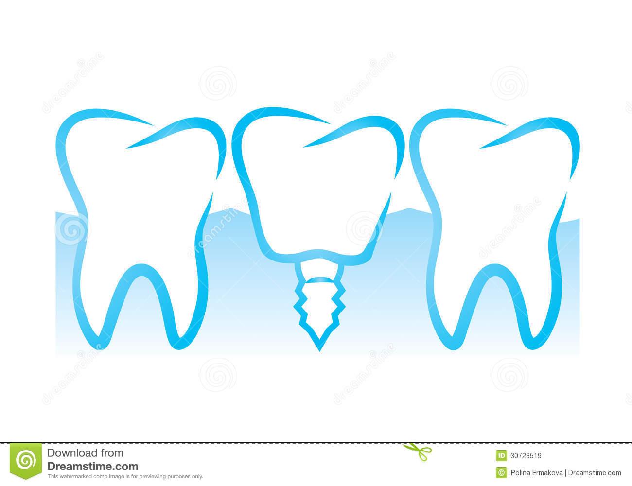 Dental Implant Clipart.