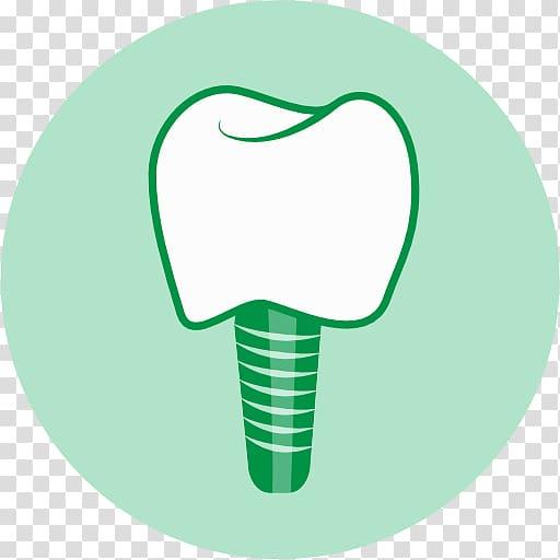 Dental implant Dentistry Human tooth Dentures, Implant.