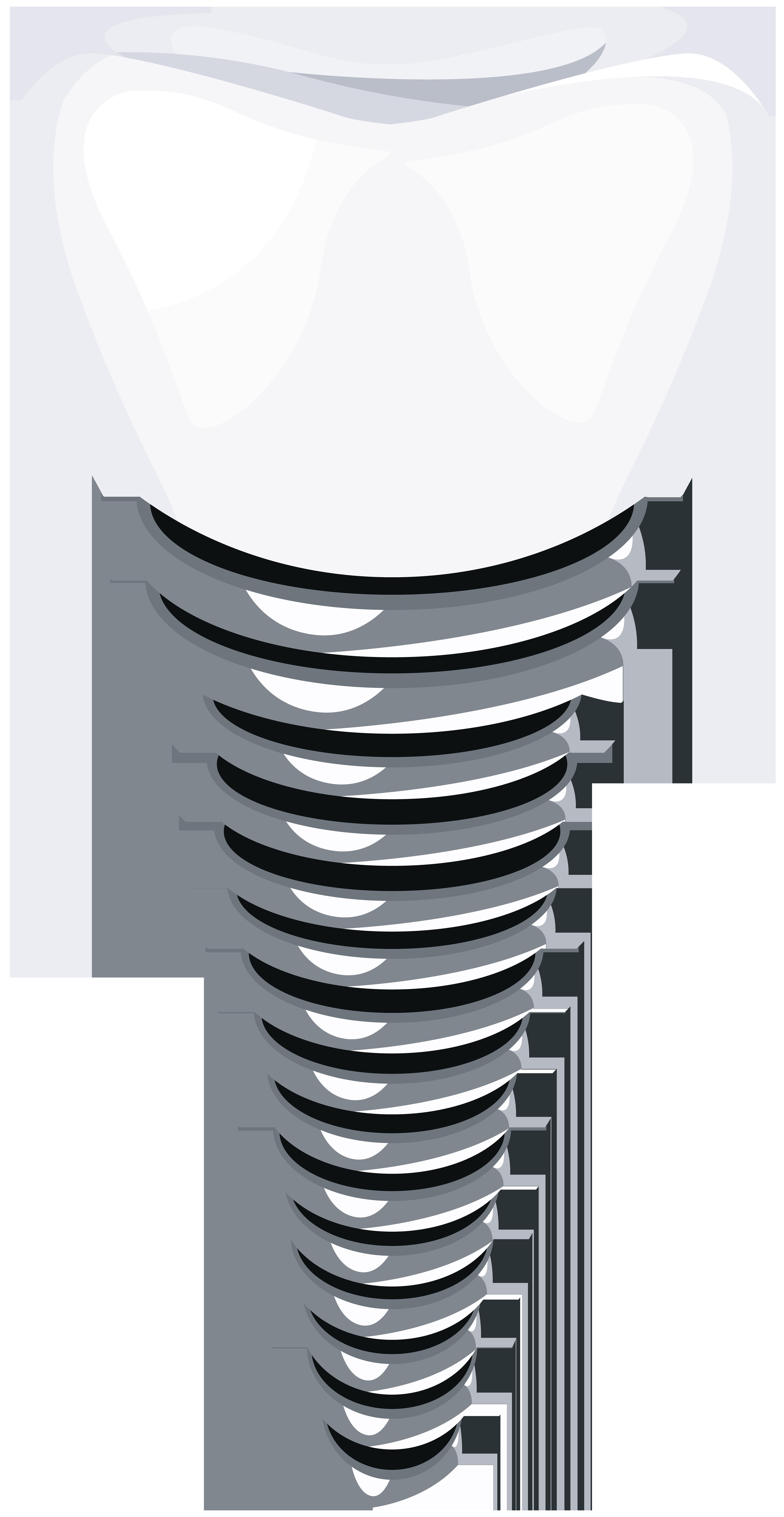 Dental Implant PNG Clip Art.