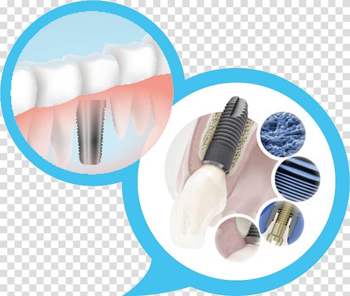 Dental implant Dentistry OSSTEM IMPLANT, dental implants transparent.